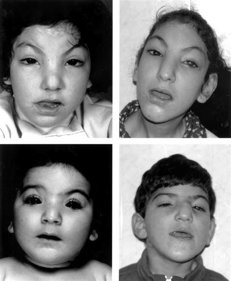 A consanguineous family with Hirschsprung disease