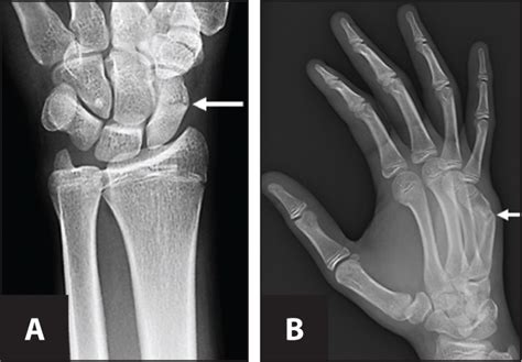 Pediatric Upper-Extremity Fractures